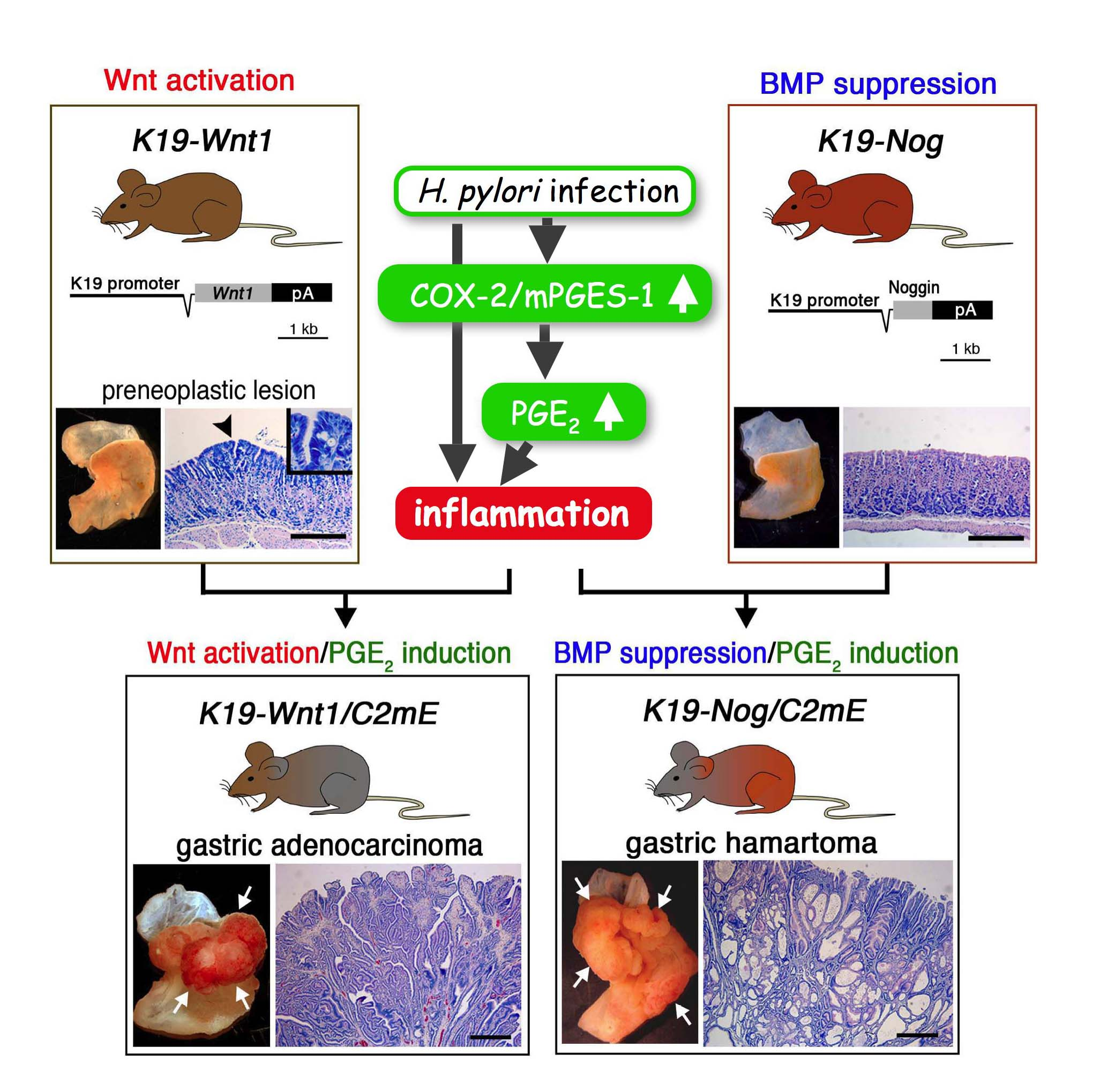 Generation of inflammation-associated gastric cancer mouse model
